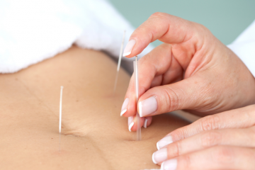 Acupuncture Claygate Clinic